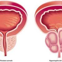 centre d urologie sud parisien urologie paris sud chirurgie urologue chirurgien cancerologie lithiase urinaire quincy sous senart 91480 paris hypertrophie de la prostate