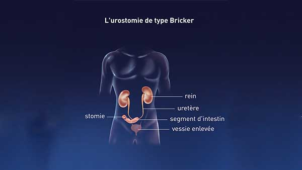 centre d urologie sud parisien urologie paris sud chirurgie urologue chirurgien cancerologie lithiase urinaire quincy sous senart 91480 paris l urostomie de type bricker