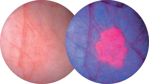 centre d urologie sud parisien urologie paris sud chirurgie urologue chirurgien cancerologie lithiase urinaire quincy sous senart 91480 paris technique de depistage de carcinome par fluorescence