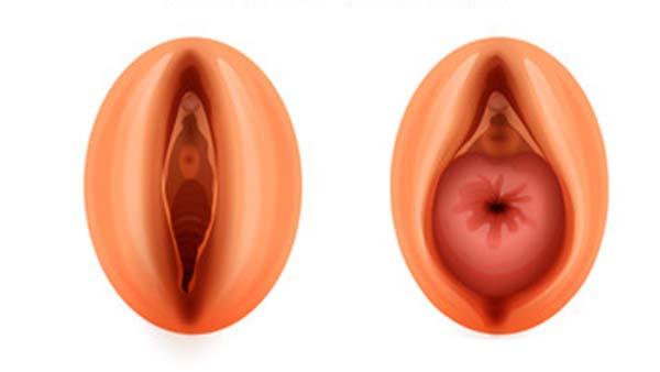 centre d urologie sud parisien urologie paris sud chirurgie urologue chirurgien cancerologie lithiase urinaire quincy sous senart 91480 prolapsus genito urinaire